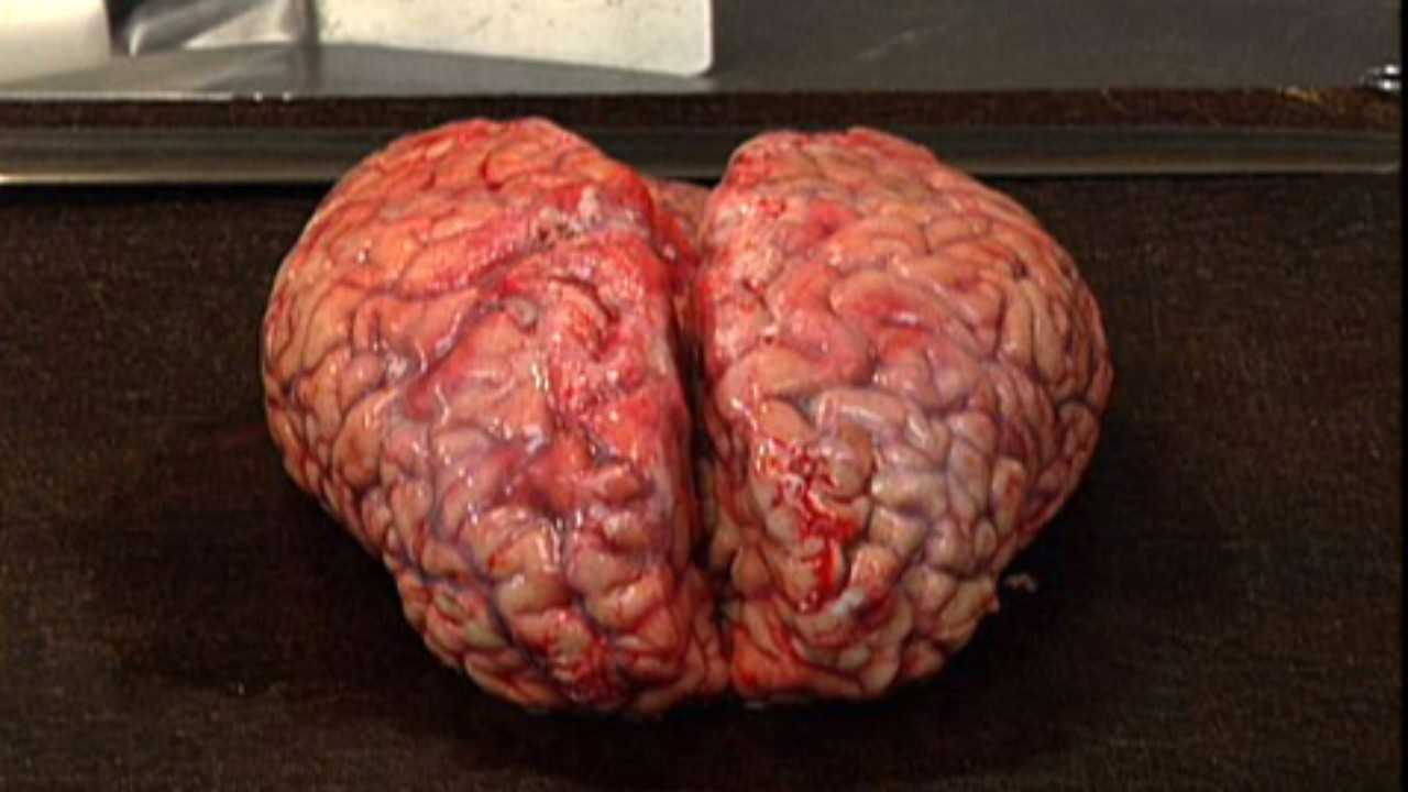 Picture of the Brain